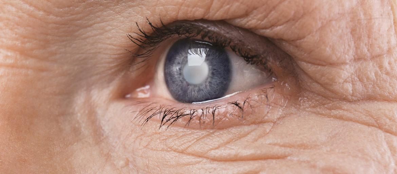 Glaucoma-treatment Lane eye care